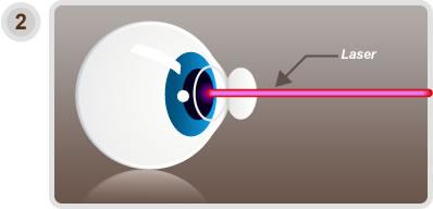 opération de la vision par le laser
