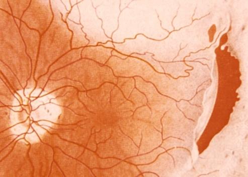 Décollement de la rétine en fond d'oeil