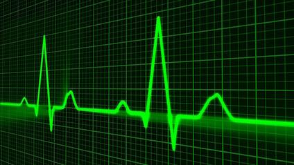 Pulsion cardiaque